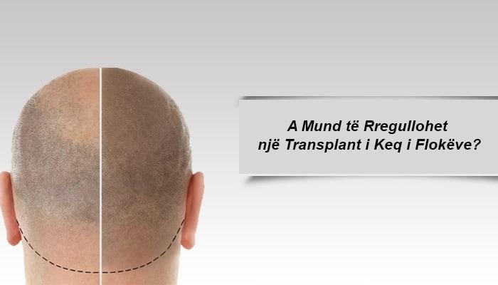 A Mund të Rregullohet një Transplant i Keq i Flokëve?