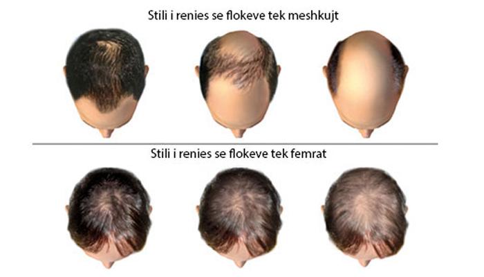 Alopecia Androgjenetike Mashkullore