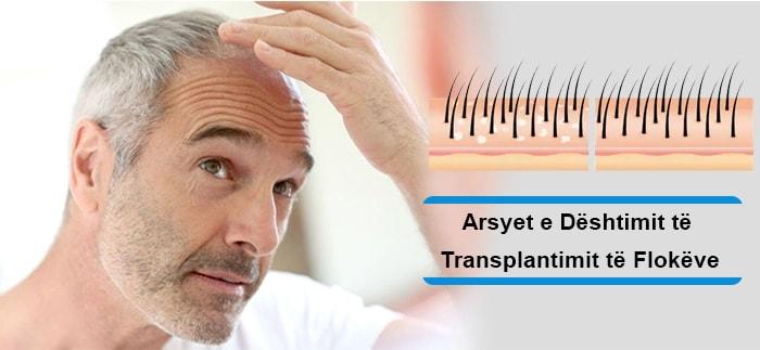 Arsyet e Dështimit të Transplantimit të Flokëve