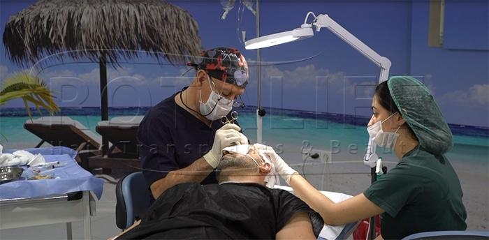 Aspekte Pozitive të Transplantit të Flokëve