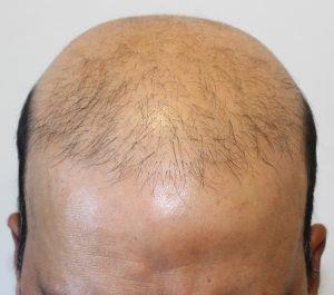 Réparation de Greffe de Cheveux