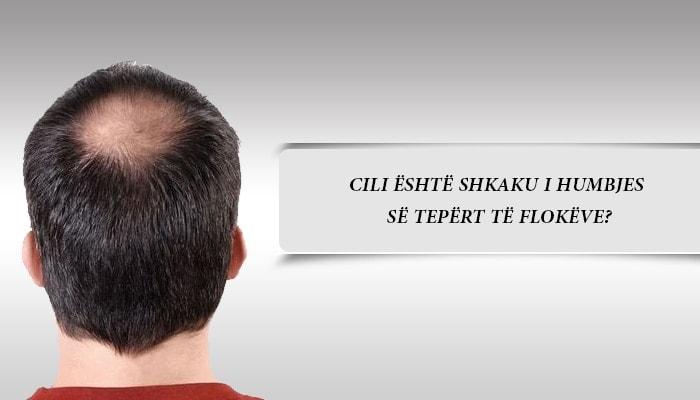 Cili është shkaku i humbjes së tepërt të flokëve?