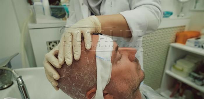 First Wash After Hair Transplantation