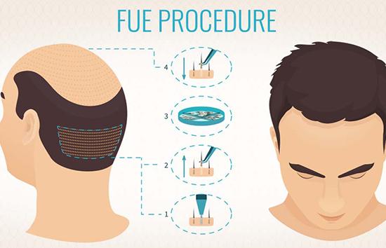 Fue hårtransplantation i Turkiet