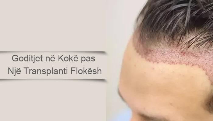 Goditjet në Kokë pas Një Transplanti Flokësh
