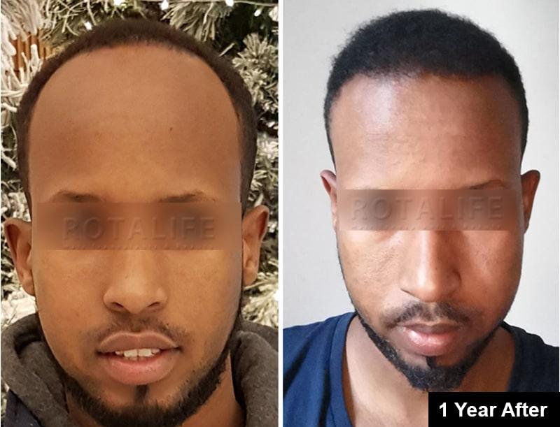 hair transplant afro