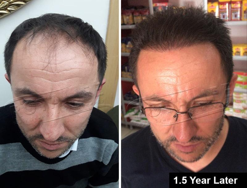 کاشت مو fue