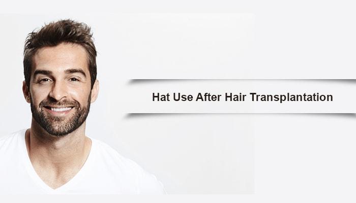Hat Use After Hair Transplantation