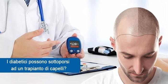 I diabetici possono sottoporsi ad un trapianto di capelli?