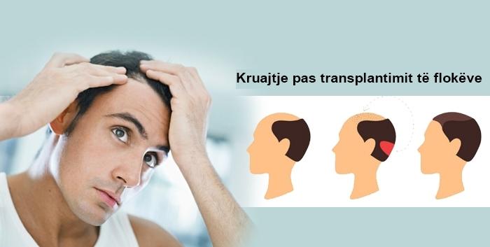 Cila është shkaku i irritimit pas transplantimit të flokëve dhe si kalon?