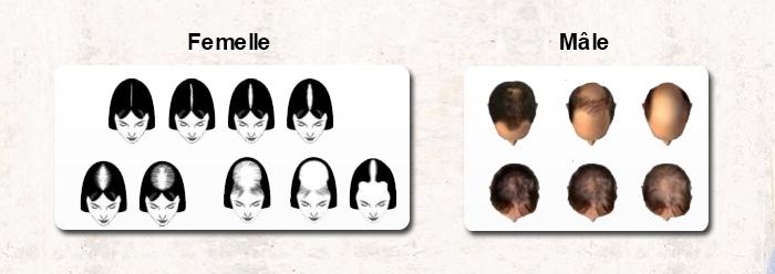 Les Types les Plus Courants de Perte de Cheveux