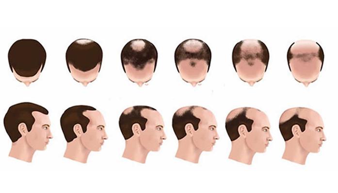 Male Androgenetic Alopecia