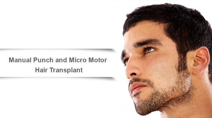 Manual Punch and Micro Motor Hair Transplant