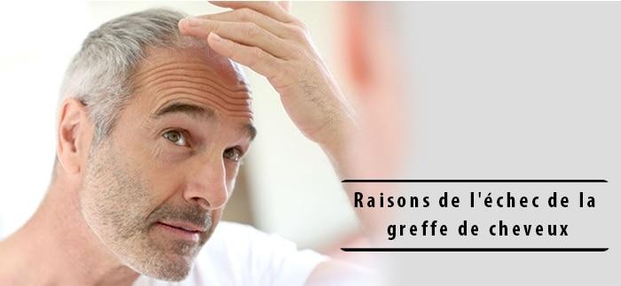 Raisons de l'échec de la greffe de cheveux