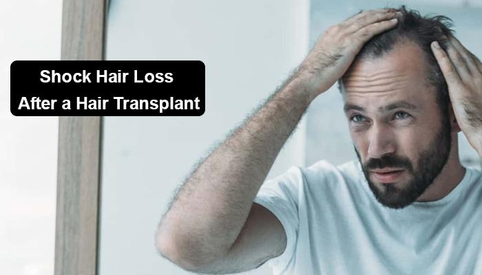 Shock Hair Loss After a Hair Transplant