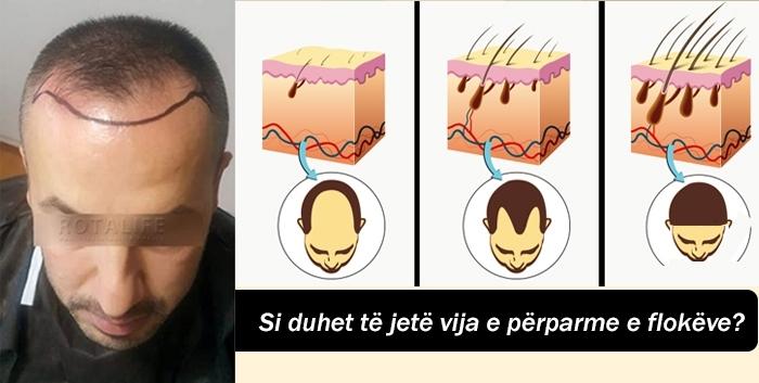 Si duhet të jetë vija e përparme e flokëve?