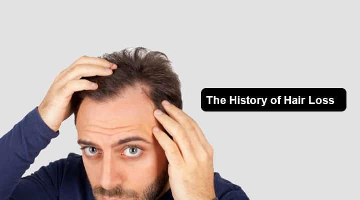 The History of Hair Loss