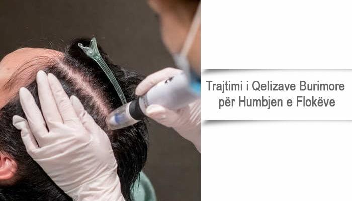 Trajtimi i Qelizave Burimore për Humbjen e Flokëve
