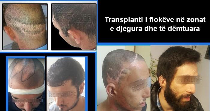 Transplanti i Flokëve në Zonat e Djegura Dhe të Dëmtuara