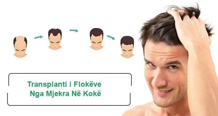 Transplanti i Flokëve Nga Mjekra Në Kokë