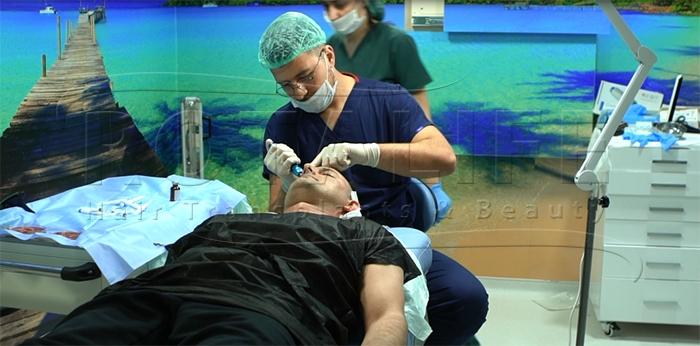 Transplantim Pa Gjilpërë i Flokëve
