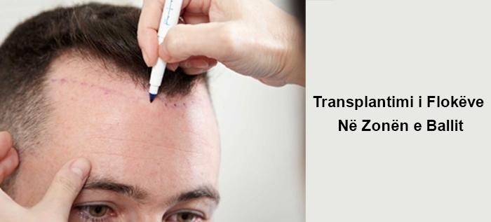 Transplantimi i Flokëve Në Zonën e Ballit