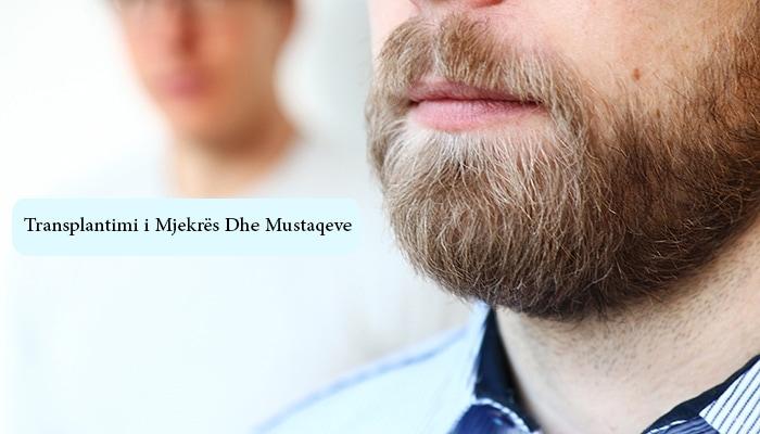 Transplantimi i Mjekrës Dhe Mustaqeve