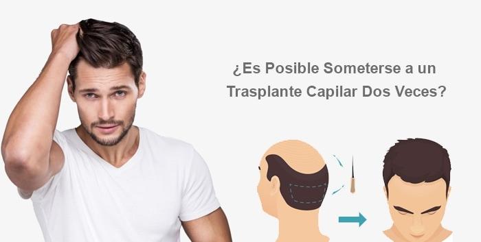 ¿Es Posible Someterse a un Trasplante Capilar Dos Veces?