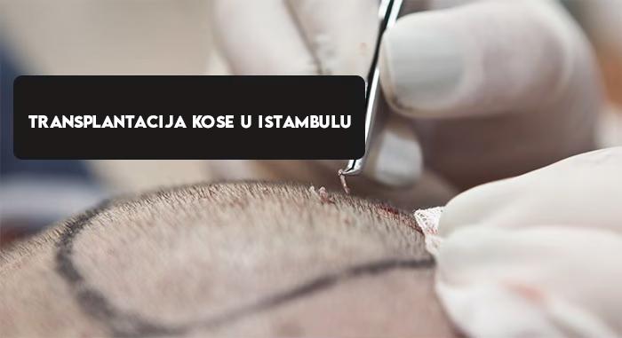 Transplantacija kose u Istambulu
